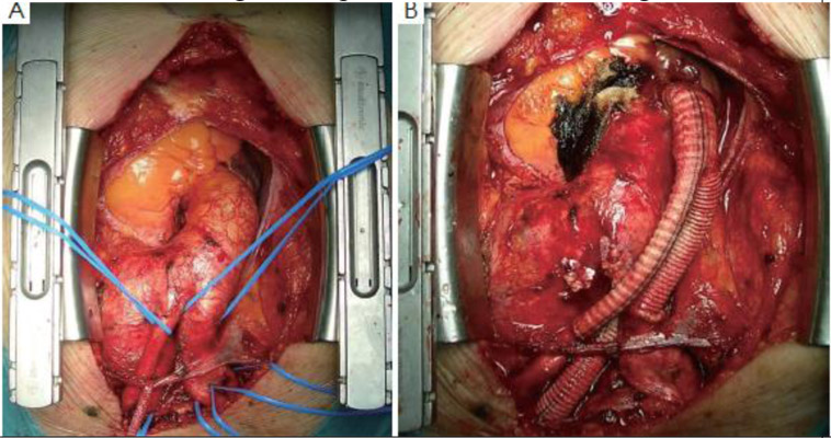 ретроградное расслоение дуги аорты фото некоторых